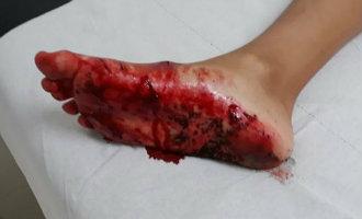 Surfend kind gewond na beet van een haai voor de kust van Gran Canaria