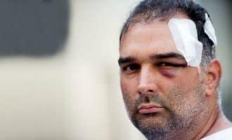 """Toerist wordt aangevallen door """"looky-looky"""" straatverkopers in Barcelona"""