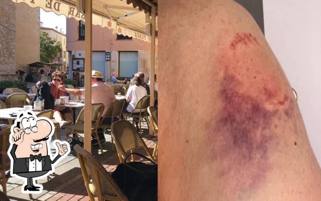 Meisje bijt barmedewerker in Girona vanwege verbod op roken op terras