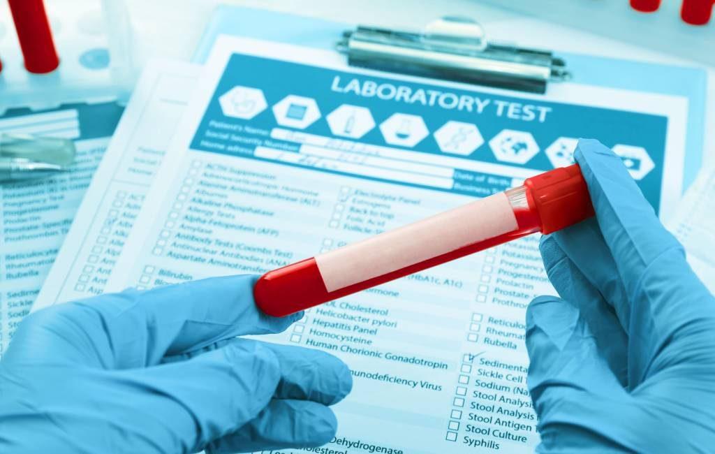 Politie arresteert arts en receptioniste medisch centrum in Málaga vanwege valse PCR-tests